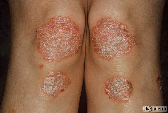 Talking to others about psoriasis